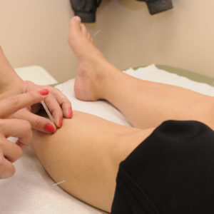 does acupuncture really work